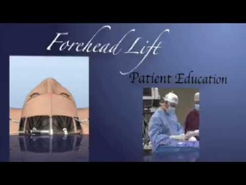 Forehead Lift (Brow Lift) procedure video overview.