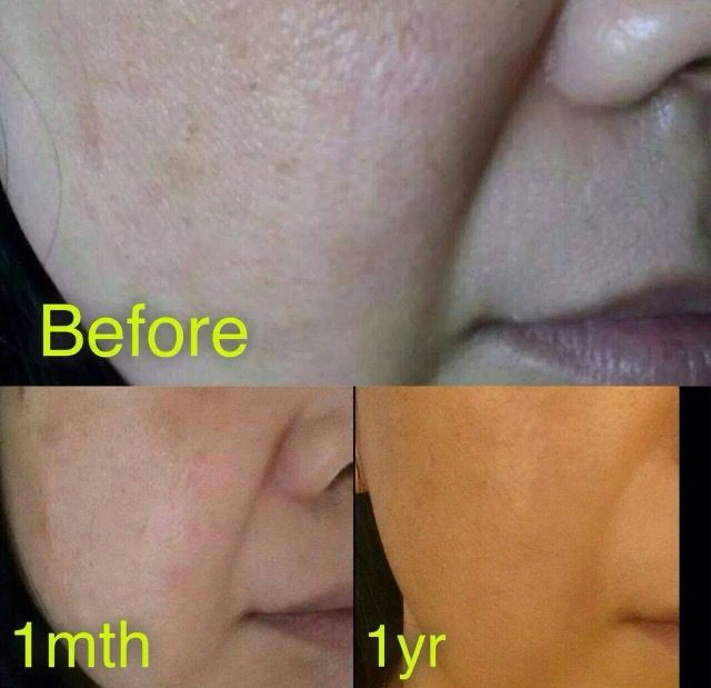#Testimony After using #Nucerity immediately and then after 1 yr @Recipe2Success #anti-aging