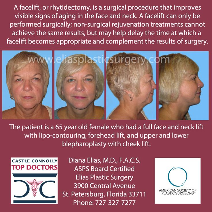 This lovely lady had it all! #Facelift and #necklift with lipo-contouring, forehead lift, #cheeklift, upper and lower #blepharoplasty. Wow, what a difference!