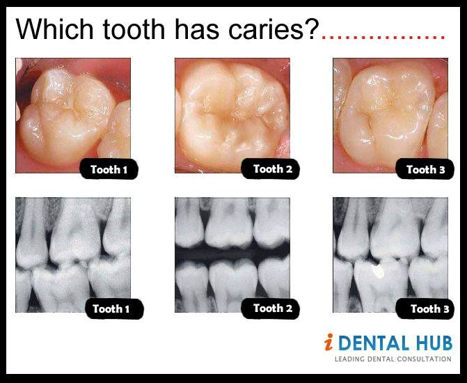 dental caries essay Nutrition counseling has an important place in the dental care setting given the clear relationship between dietary factors and dental caries and the association between.