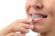 Dientes con aparatos de ortodoncia dentista