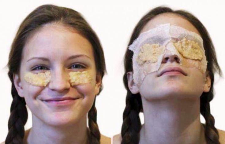 5 astuces beauté avec la pomme de terre qui donnent la patate à votre joli visage - Astuces de grand mère