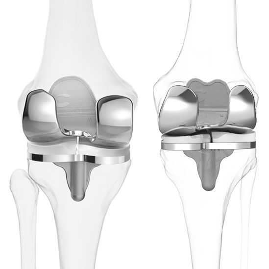 3D Printed Knee Implants Get Running on NASDAQ with ConforMIS IPO  #3dprinting  Please join our Facebook chat and have another look at our website with regard to specials on 3d printed items and enjoy our training articles. https://www.facebook.com/3dprintingsa