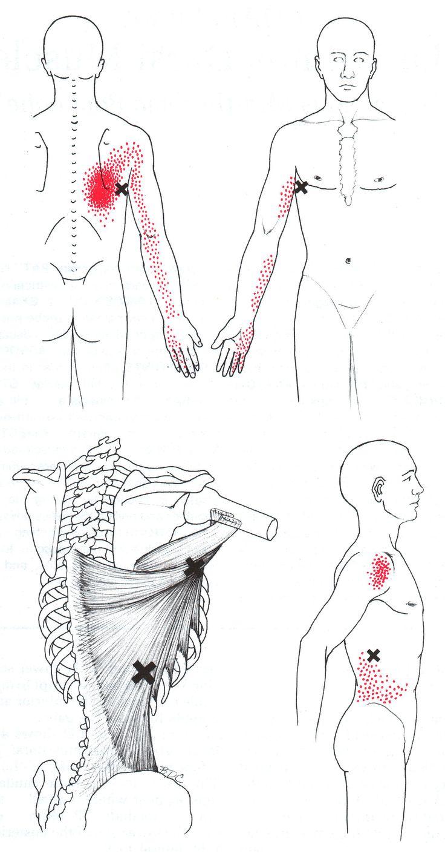 131 Best Trigger Points    Dorsal Body Motion Images On Pinterest