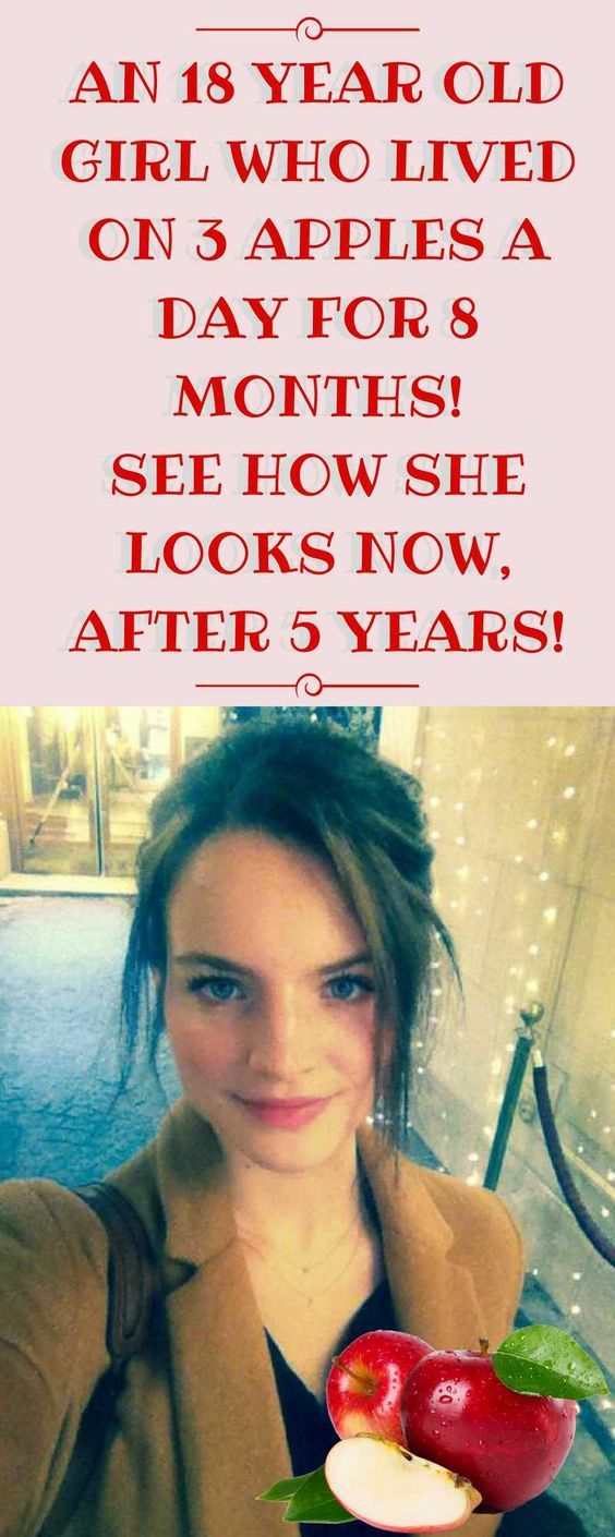 THIS 18-YEAR-OLD GIRL LIVED ON 3 APPLES A DAY FOR 8 MONTHS! 5 YEARS LATER THIS IS WHAT SHE LOOKS LIKE!!!`!