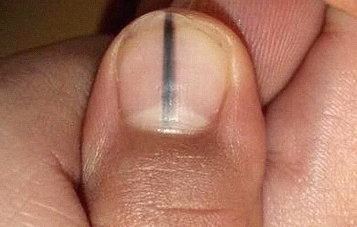Your Nails Can Reveal A Great Deal About Your Health Here 39 S Why You Should Never Ignore A Black Line On Your Black Marks On Nails Nail Health Nail Symptoms