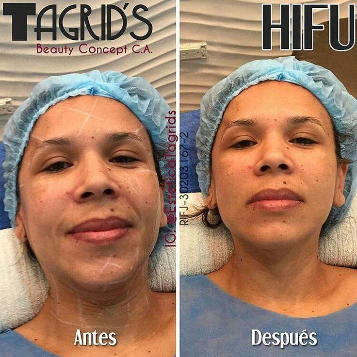 HIFU Lifting sin Cirugía - Equipo de Ultima Generación . HIFU es una tecnología de Ultrasonido focalizado de alto impacto provoca tensado elevación genera nuevo colágeno y rejuvenecimiento sin cirugía.  Está indicado para la flacidez cutánea pieles desvitalizadas ptosis de tejido entre otros. Abarca la zona facial y cervical. . La papada desaparece los párpados se elevan y las arrugas se tensan. Ideal contra la flacidez .  Todo en una sola sesión y los resultados permanecen hasta un año y…
