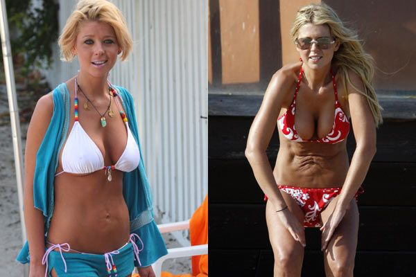 Plastic Surgery Tips   ....  Chatter Busy: Tara Reid Botched Plastic Surgery