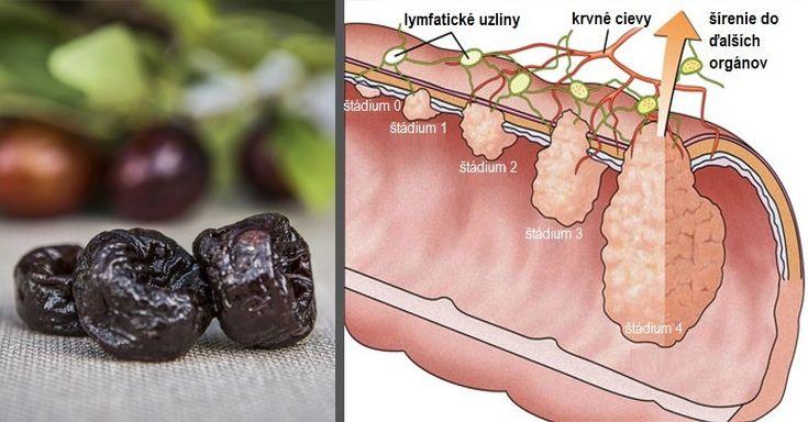 Rakovina hrubého čreva je u nás 2. najčastejším typom rakoviny. A pritom existuje jedno ovocie, ktoré jej výskyt dokáže dramaticky znížiť.