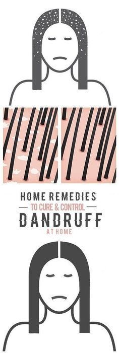 50 Best Natural Home Remedies For Dandruff