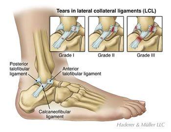 Grade II ankle sprain