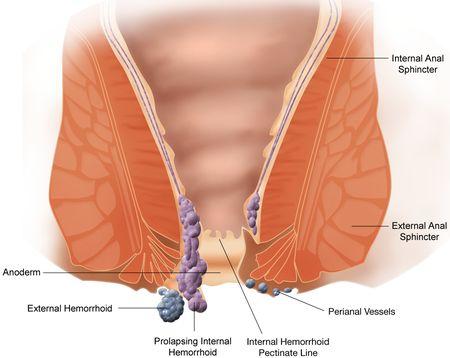 Proctologia e Gastroenterologia - Cuccomarino, MD
