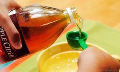 Aujourd'hui, pour la plupart des gens, le vinaigre n'évoque que la sauce vinaigrette. Mais au-delà de ses qualités gustatives, sait-on encore comment cet ingrédient s'est imposé à tous dans l'alimentation d'abord et dans la trousse à pharmacie familiale ensuite ? Trois qualités fondamentales ont imposé le vinaigre dans les foyers des nos aînés : Il était …