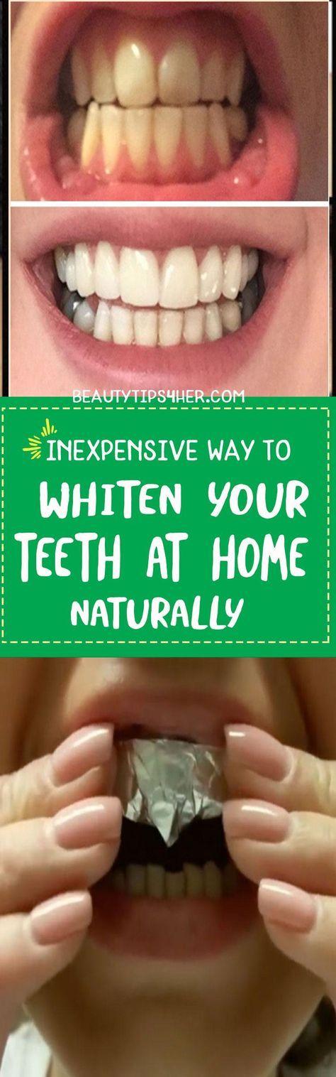 Whiten teeth at home