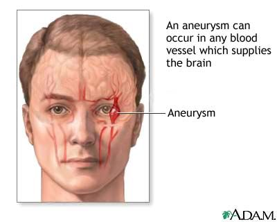 95 best aneurysms images on pinterest   aortic aneurysm, abdominal, Human Body