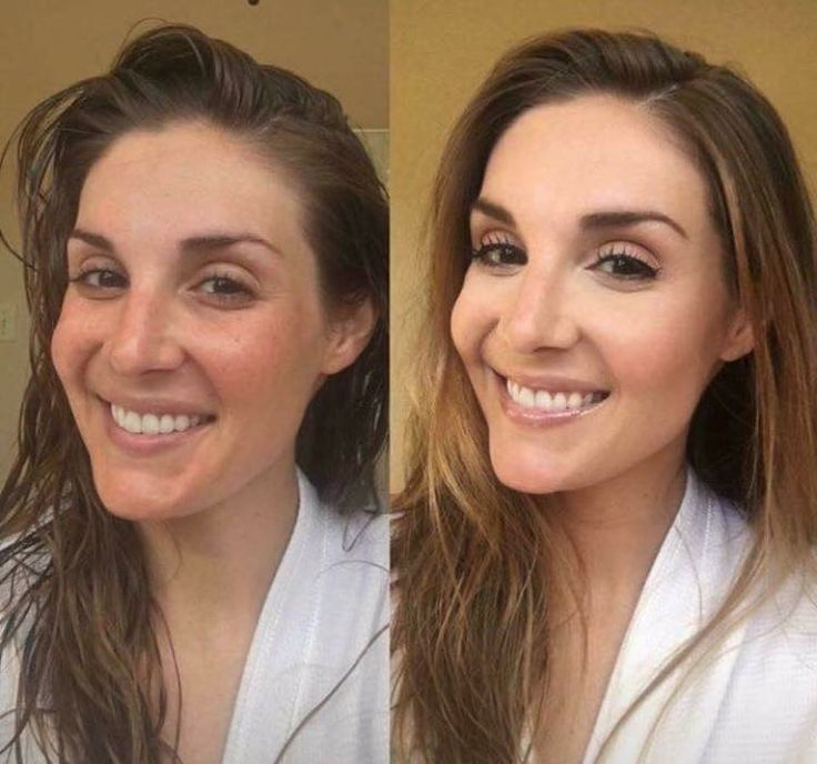 """This is what former Miss Louisiana USA, Erin Edmiston had to say about Limelight.  """"I've tried so many different makeup lines in hopes that they would: 1) cover my dark circles 2) hide my redness  3) cover my hyperpigmentation due to sun damage over the years.... Nothing compares to LimeLight by Alcone. This is the best coverage I've ever achieved with makeup and the least caked on I've ever felt!""""  🙌"""