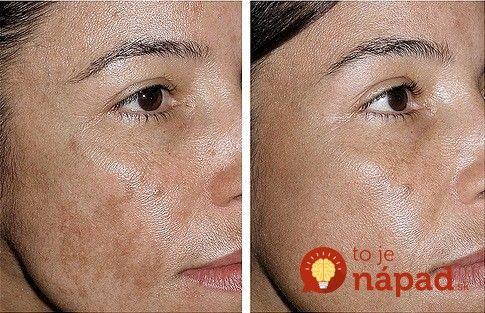 Máte na tvári, rukách alebo dekolte pigmentové škvrny. Takto sa ich môžete…
