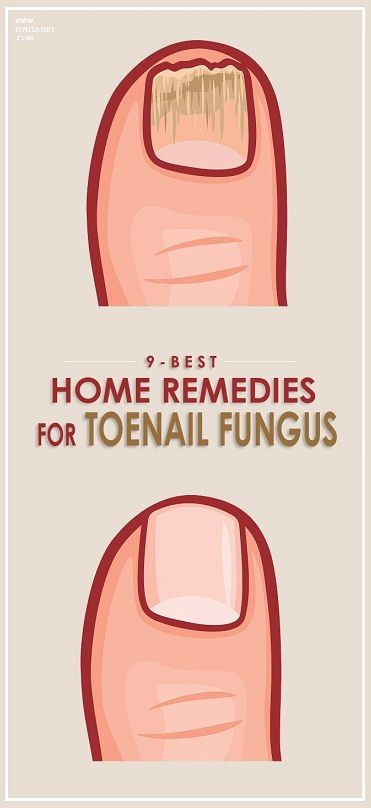 How to Get Rid of Toenail Fungus.