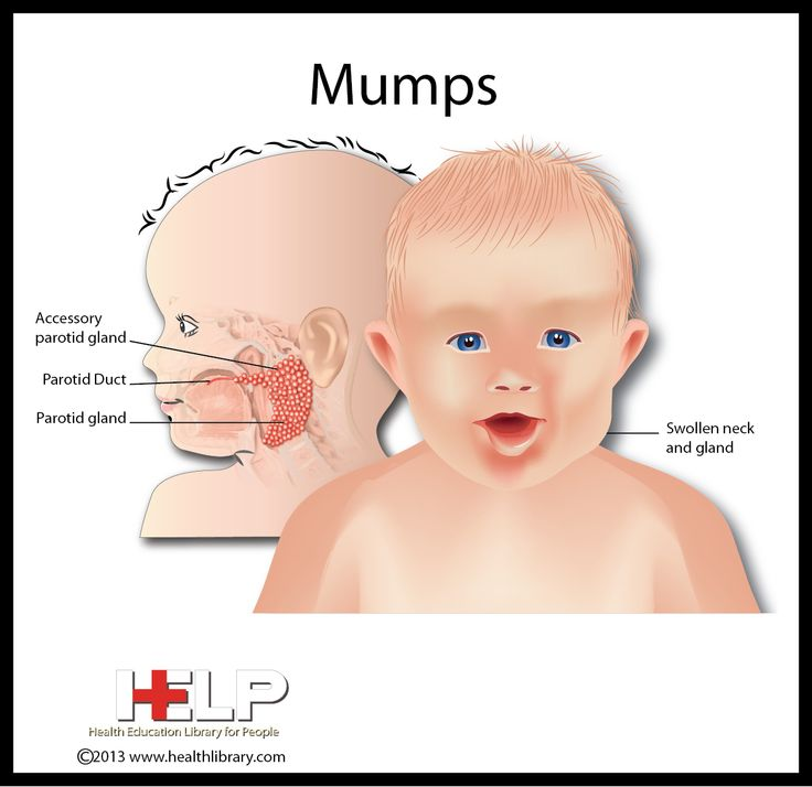 35 best Childhood Diseases & Illnesses images on Pinterest ...