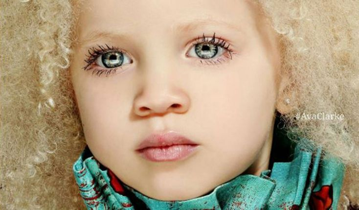 Esta hermosa niña albina se hizo popular por su estilo