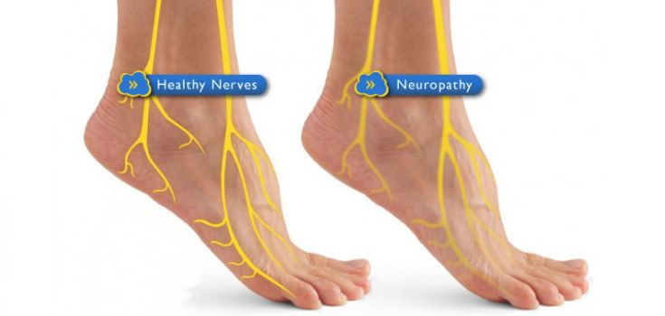 Suffering from diabetic neuropathy? Research shows how numerous nutritional supplements are capable of even reversing nerve damage. Here are 6 solutions.