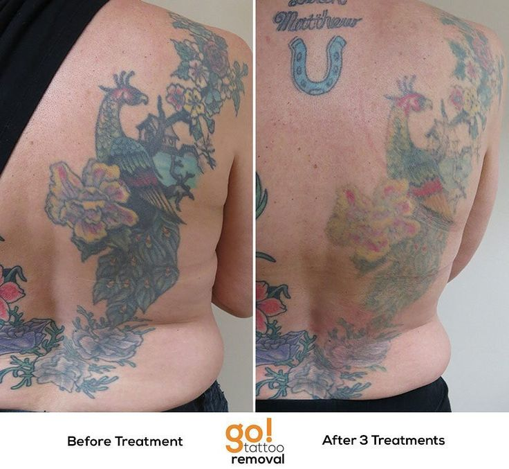 679 best images about tattoo removal in progress on for How much is picosure tattoo removal