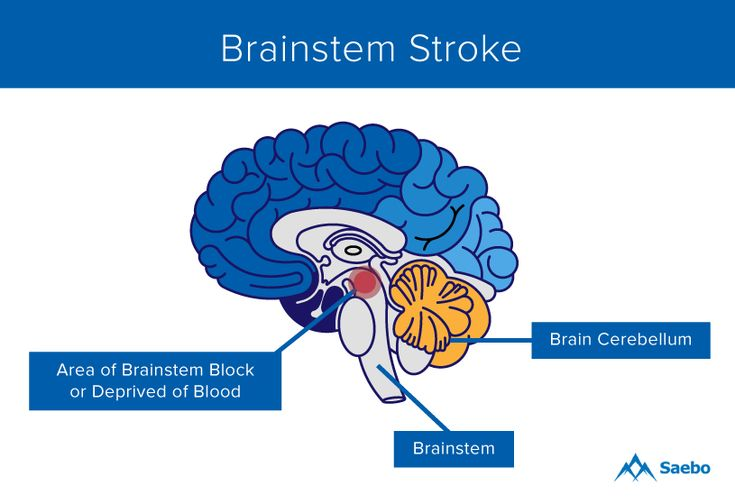 36 best Understand  Stroke & TIA images on Pinterest | Diff'rent strokes, Health and Medical