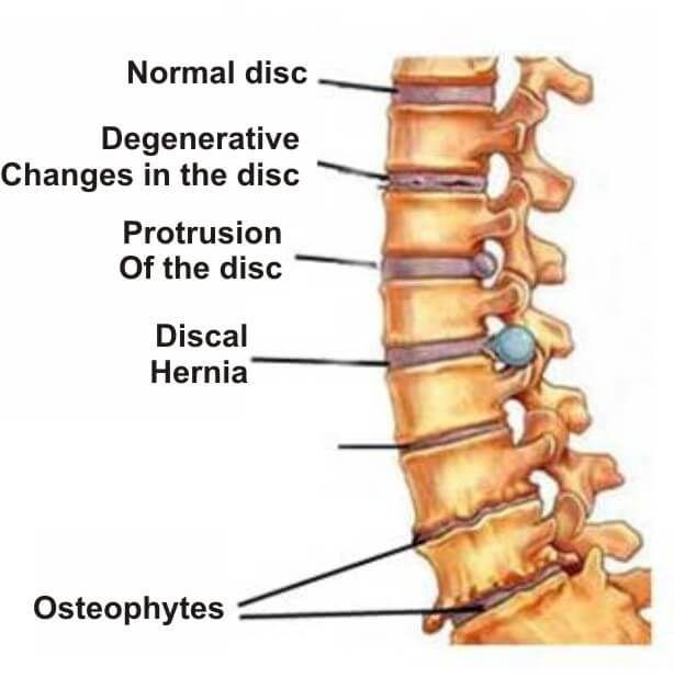 durere în toate articulațiile cu anorexie medicament în fiole pentru dureri articulare