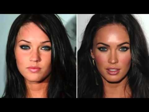 30 Heinous Celebrity Plastic Surgery Fails - The Hollywood ...