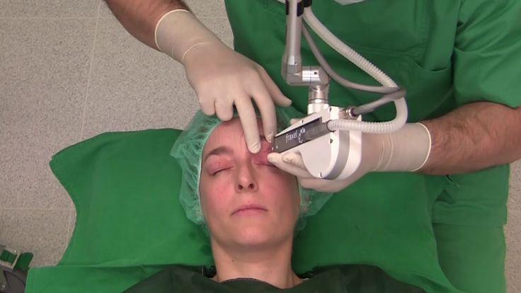 Behandlung Augenlidstraffung mit dem Laser - ohne OP