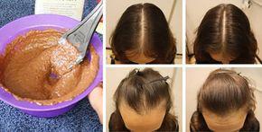 Come far ricrescere i capelli in 2 settimane con la cannella
