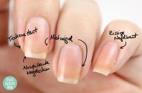 Nagelpflege Schritt für Schritt – Tipps – Hilfe – von frisch gestrichen   – Schönheit