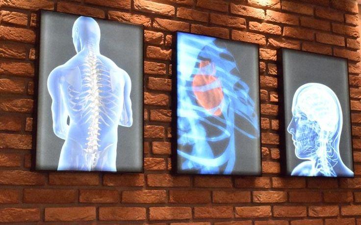 Ακτινολογικό ιατρείο - Σύγχρονο διαγνωστικό κέντρο στην Αλεξάνδρεια