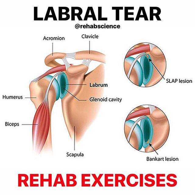 Pin On Labral Tear