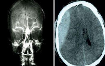 Valle #d'Aosta: La #salute su Aostaoggi.it: il trauma cranico nei bambini (link: http://ift.tt/2o86EoB )