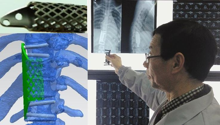 Chinese Student Receives First 3D Printed Thoracic Vertebrae Implant http://3dprint.com/30512/3d-printed-thoracic-vertebrae/