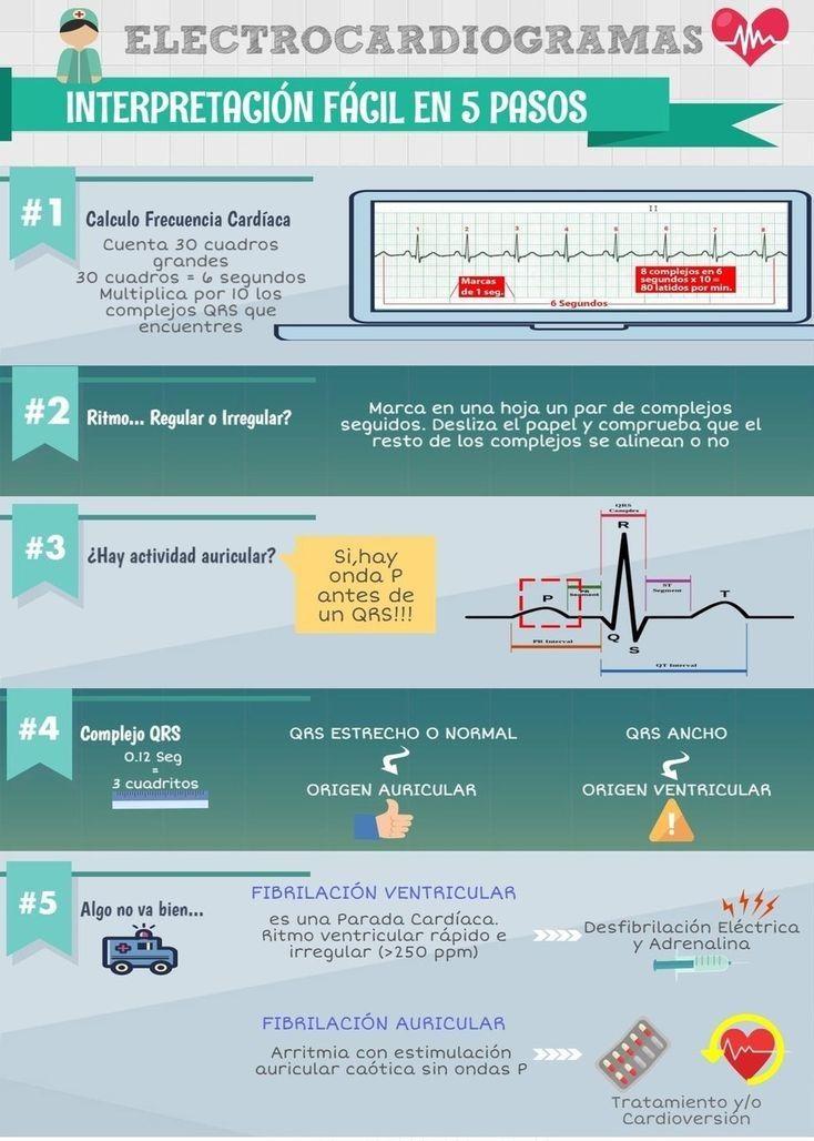 INTERPRETACIÓN DEL ELECTROCARDIOGRAMA EN 5 PASOS