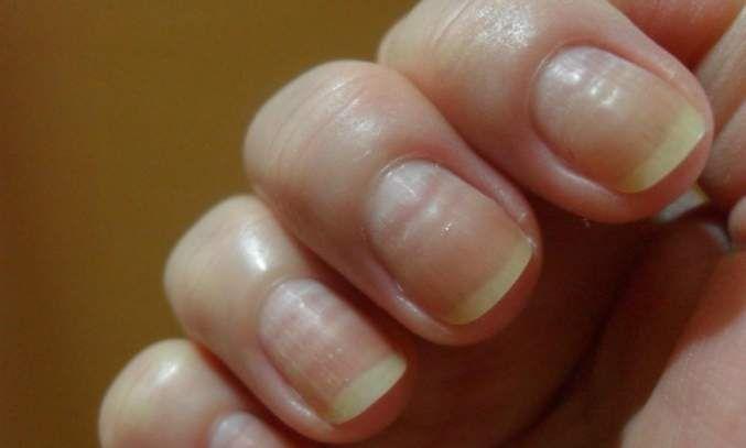 Cómo prevenir y tratar las uñas onduladas | Decoración de Uñas - Manicura y Nail Art