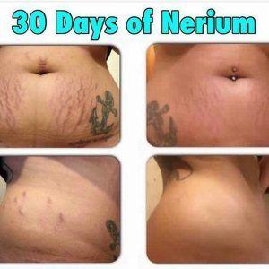 ¿Es la crema Nerium venenosa o es verdad que ofrece resultados reales?