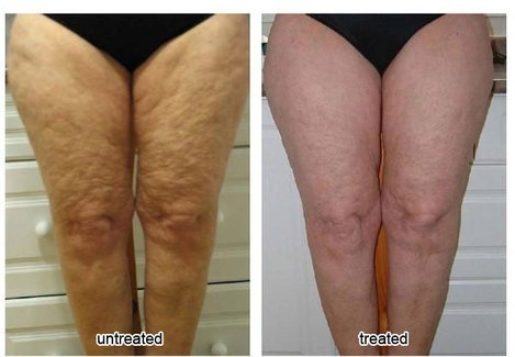 Before & After Nuskin Cellulite Treatment