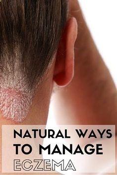 Natural ways to treat eczema