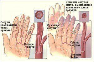 Онемение пальцев рук и ног http://indexmed.net/blog/fabrica_salutis/1556.html