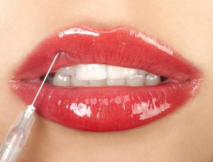 Lip filler / Relleno NO permanente de acido hialuronico para LABIOS MAS sexies.  ELITE PLASTIC SURGEON MÉXICO CITY Cirugía plástica México