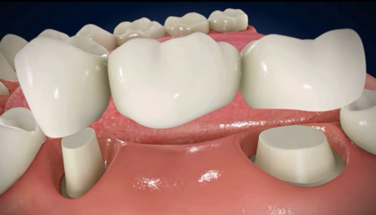 What are the benefits of dental bridges? i. Restore you smile ii. Helps you in chewing iii. Stops the neighboring tooth from misaligning