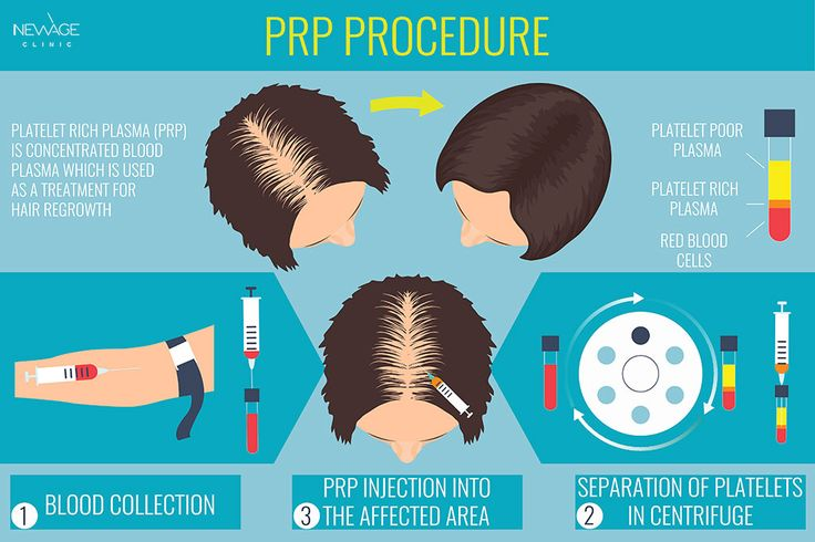 The targeted result of the PRP treatment is revitalizing the weak hair follicles which are prone to falling off. It has been observed that the level of hair thinning decreases and the hair shafts get thicker on the administration site with those patients who are treated with PRP.  /// For more information 📲 WhatsApp: 0090543 470 47 09 ///  #Prp #HairTransplant #Hairloss #fue #fuehairtransplant #alopezie #Haarverlust #Prp #hårtransplantasjon #пересадкаволос #毛髪移植 #모발이식#ishrs #زراعةالشعر
