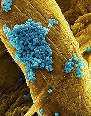 Streptococcus pneumoniae was formerly called  Diplococcus pneumoniae.