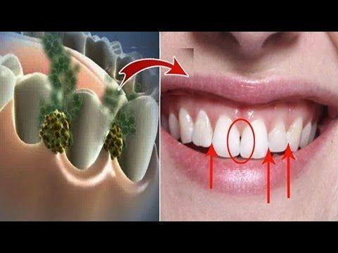 Enjuaga tu boca con esto por 30 segundos y quitaras el sarro y la placa bacterial de tus dientes - YouTube