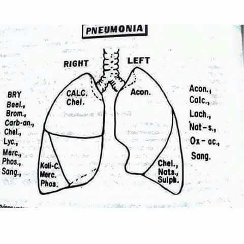 3862 best h pathy images on pinterest homeopathy sepia flowchart homeopathic remedies homeopathy medicine sepia homeopathy medical science medical medical technology ccuart Images