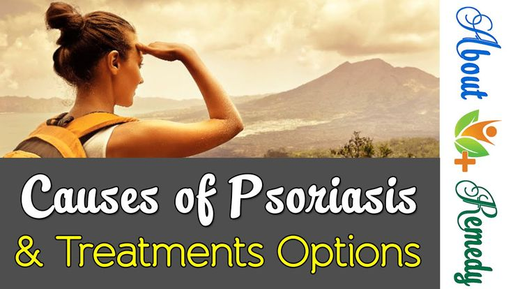 3 Causes of Psoriasis And Its Natural Treatment Options | About Remedy http://youtu.be/y6V4fhPWkZA