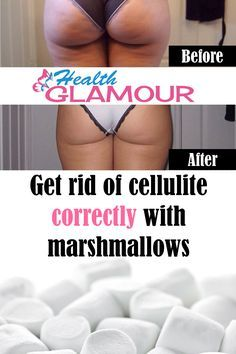 For a better understanding of what cellulite is exactly, let's start this explanation with a review of skin's anatomy. The outer layer of the skin is called epidemis. Just below it, there is the dermis, which is rich in hair follicles, sweat glands, blood vessels, connective tissues and nervous receptors. The next layer of tissue...Read More »